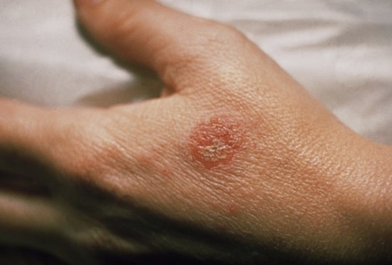 eczema sur la main