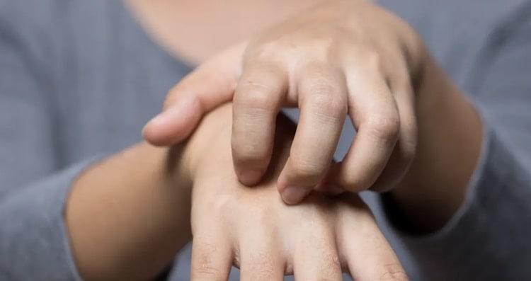 traitement eczema avec cbd